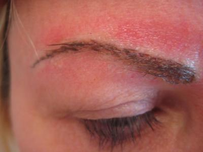 After Eyebrow Enhancement